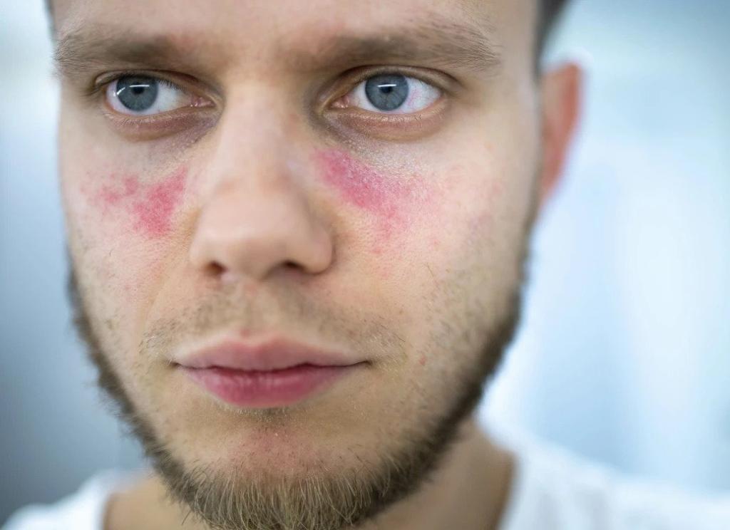 Lupus- Causes, Symptoms, Treatments & More