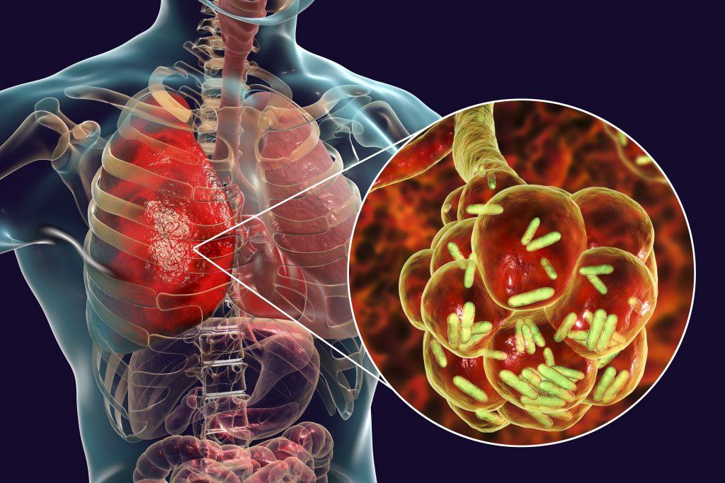 Pneumonia, signs, symptoms, and treatment
