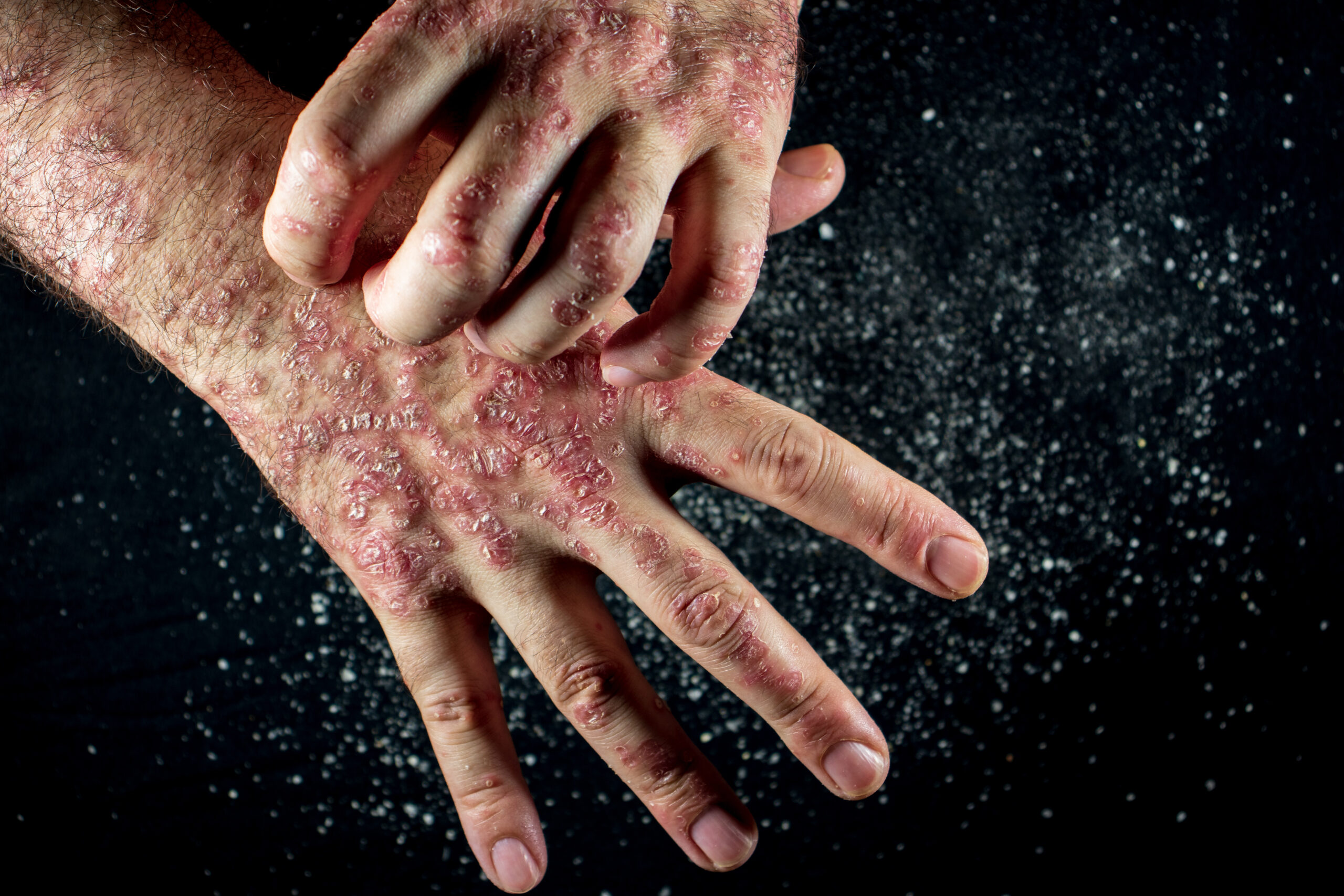 Psoriasis- Causes, Types, Symptoms, and More
