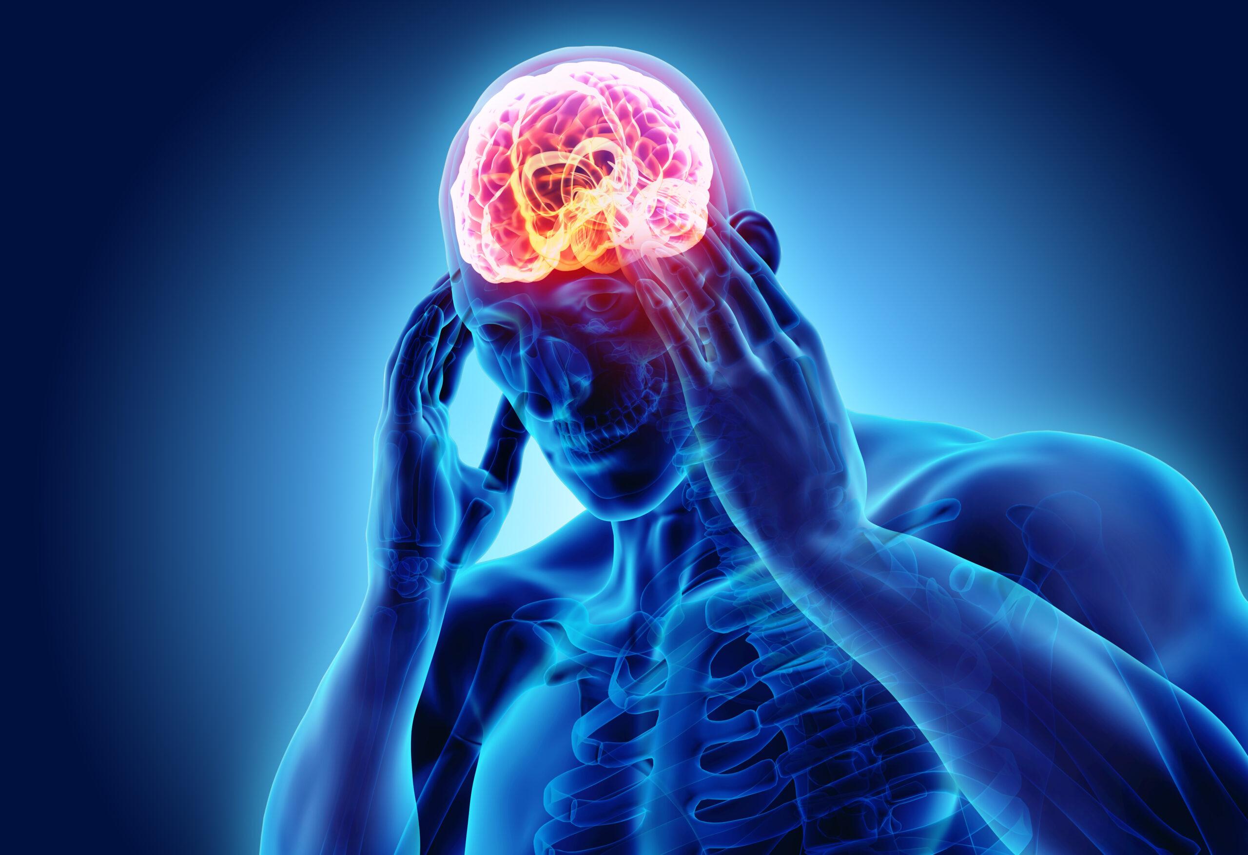 Migraine Facts: Symptoms, Treatments, Prevention, & More