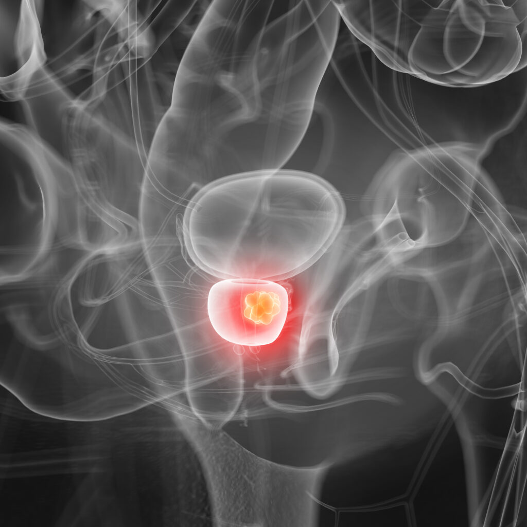 Prostate Cancer- Causes, Symptoms, Treatments & More