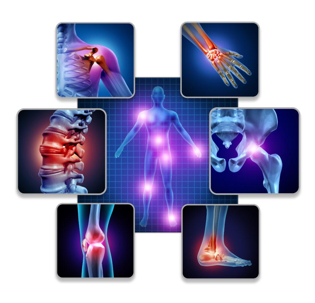 Arthritis: Causes, Symptoms , Treatments, & Prevention